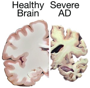 Comparison of Healthy Brain to Brain affected by severe Alzheimer's Disease   Image courtesy of the National Institute on Aging/National Institutes of Health