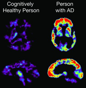 PET Scan showing PiB uptake -   Image courtesy of the National Institute on Aging/National Institutes of Health
