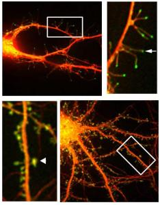 This is a fluorescent microphotograph of neurons that shows filapodia extending out from dendrite. Courtesy of Webb Lab / Vanderbilt