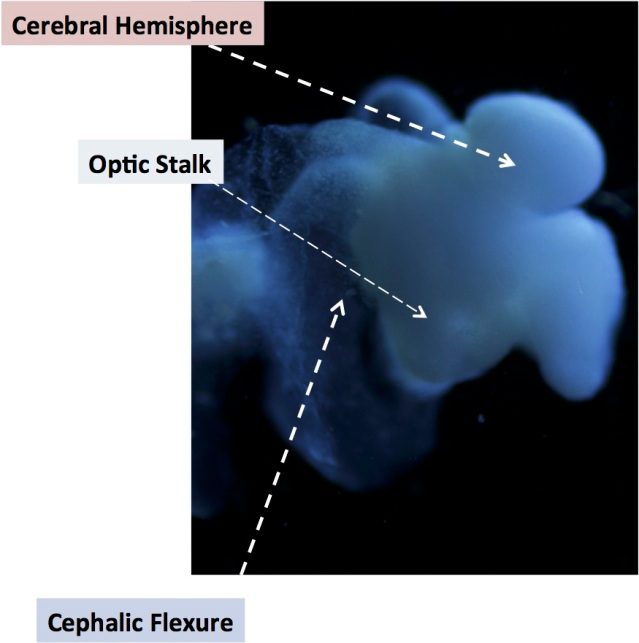 This image of the lab-grown brain is labeled to show identifiable structures: the cerebral hemisphere, the optic stalk and the cephalic flexure, a bend in the mid-brain region, all characteristic of the human fetal brain. Photo courtesy of The Ohio State University