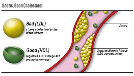 FLI cholesterol-Alabama