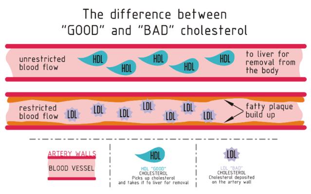 FLI cholesterol