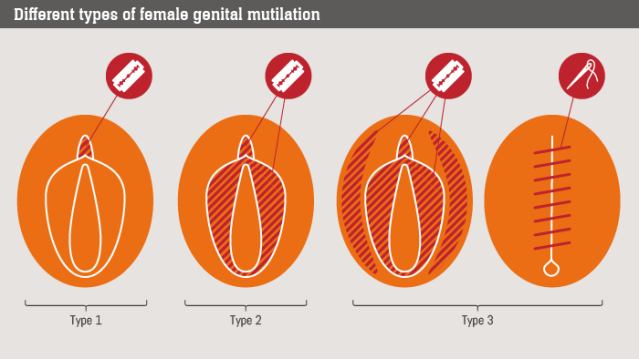 FLI FGM